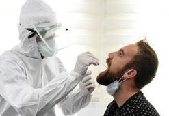 Bugün korona virüs tablosunda vaka sayısı 4.542, ölen sayısı 123 İşte detaylı korona virüs tablosu