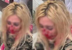 Eski sevgilisinin oğlu kadına kafa atarak kanlar içinde bıraktı