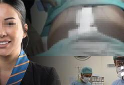 Genç kadın Brezilya kalçası istedi, ölümden döndü Estetik faciası