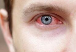 Adenovirüs nedir, nasıl bulaşır Adenovirüs belirtileri ve tedavi yöntemi