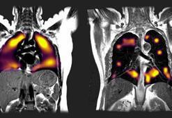 Yeni tarama tekniği, virüsün akciğerlerde bıraktığı hasarı gösterdi