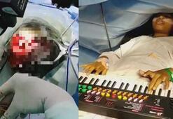 9 yaşındaki kız beyin ameliyatı sırasında piyano çaldı