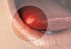HIV belirtisi olabilir Ağız içinde oluşan...