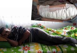 Yaban domuzu saldıran çiftçinin bacağına 60 dikiş atıldı