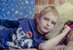 Kızamık Belirtileri Nelerdir Kızamığın Tedavisi Nasıl Yapılır