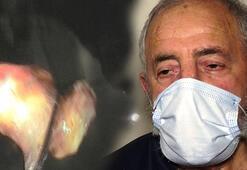 Koronavirüsten şüphelenildi, akciğerinden ceviz çıktı