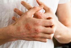 Egzamanın Belirtileri Nelerdir Egzama (Atopik Dermatit) Tedavi Yöntemleri Nelerdir
