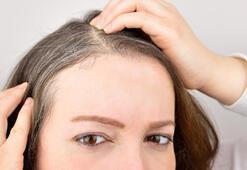 Saç beyazlamasına ne iyi gelir Saçın beyazlaması nasıl önlenir