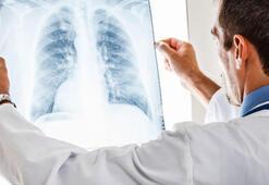Akciğer hastalıkları nelerdir Akciğer hastalıklarının belirtileri nelerdir