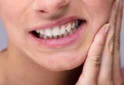 Diş şişmesine ne iyi gelir, nasıl geçer Diş eti şişmesi, apse neden olur