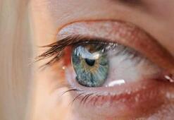 Göz nezlesine ne iyi gelir, nasıl geçer Göz nezlesi için bitkisel yöntem ve öneriler...