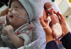 520 gram doğan Nisa bebek, 142 günde yaşama tutundu