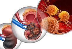Böbrek kanseri belirtileri nelerdir Böbrek hastası için tedavi yöntemleri nelerdir