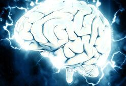 Beyin Kanaması Belirtileri Nelerdir Beyin Kanaması Nasıl Anlaşılır