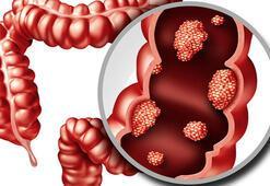 Bağırsak Kanseri Belirtileri Nelerdir Kolon Ve Rektum Kanserinin Tedavi Yöntemleri