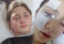 Babasıyla yastık savaşı oynayan kızın gözü parçalandı