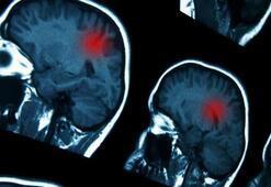 Beyin damar tıkanıklığı belirtileri nelerdir Nasıl anlaşılır, tedavisi nedir
