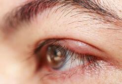 Göz kapağı şişmesi nasıl geçer Göz şişliğine ne iyi gelir Bitkisel yöntemler