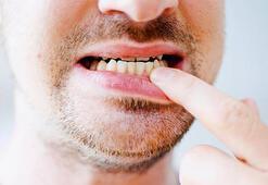 Diş Eti Çekilmesine Ne İyi Gelir, Nasıl Geçer Diş Eti Çekilmesi Tedavisi Nasıl Yapılır