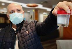 Kanser sandılar Akciğerinden çıkan şoke etti
