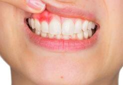 Diş eti ve diş kökü iltihabı vücuda yayılma belirtileri nelerdir Nasıl önlenir