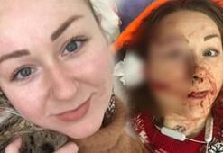 Son dakika... Ukraynalı eşe falçatalı dehşette korkunç gelişme Sosyal medyadan duyurdu