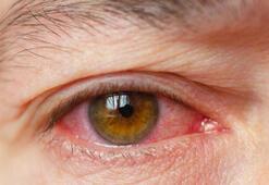 Göz kuruluğu belirtileri nelerdir Göz kuruluğuna ne iyi gelir, tedavi yöntemleri nelerdir