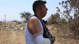 Annesi ile babasını kurtardı, vücudunun sağ kısmı yandı