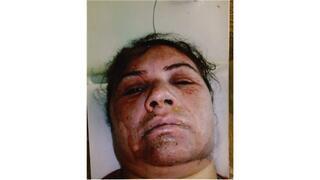 Kocasının kızgın yağla yaktığı kadın hayata döndü