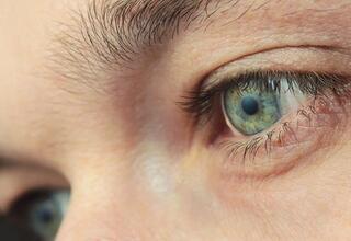 Açık renkli göze sahip olanlarda kanser riski daha yüksek