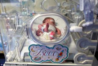 30 haftalık doğan bebeği poşete koydular