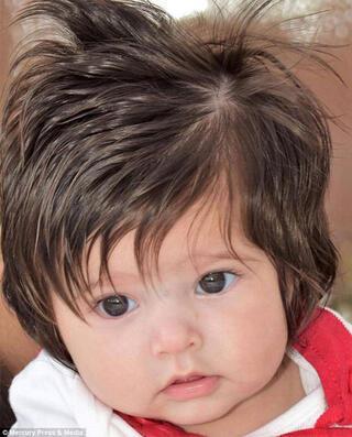 Ultrasonda saçları göründü