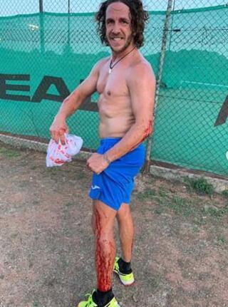 Carles Puyol şoke etti Kanlar içinde...
