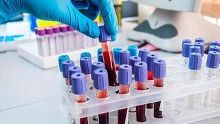 Kansere karşı en dirençli kan grubu açıklandı