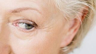 Göz tansiyonu ağrıya sebep olur mu
