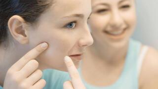 2 malzeme ile yüzünüzdeki lekeleri 5 günde yok edin