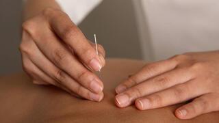 Akupunktur ile Alzheimer tedavi edilir mi