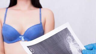 Mamografi çektirmek zararlı mı