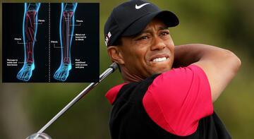 İşte Tiger Woods'un bacağının son hali