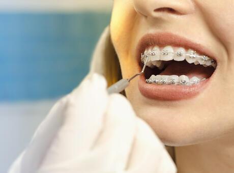 Diş Teli Fiyatları 2021: Şeffaf Plak ve Metal Diş Teli Fiyatları Ne Kadar?