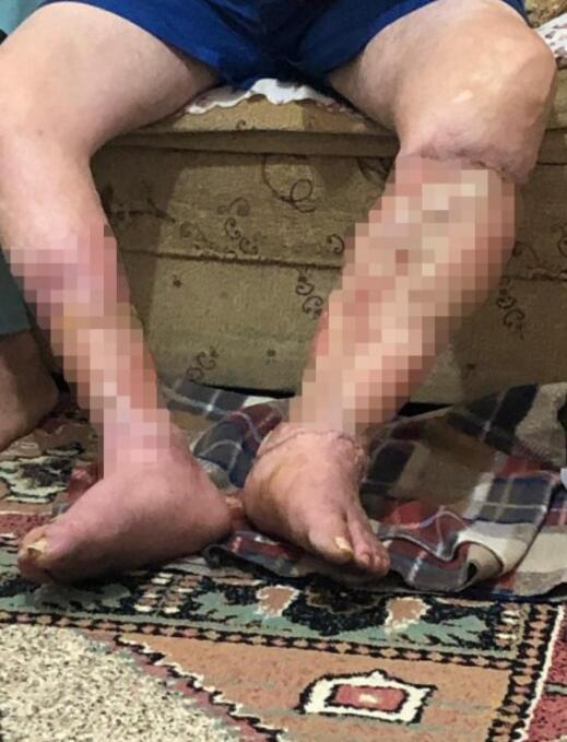 Ayak ülseri hastalığına yakalandı Evden dışarı çıkamıyor