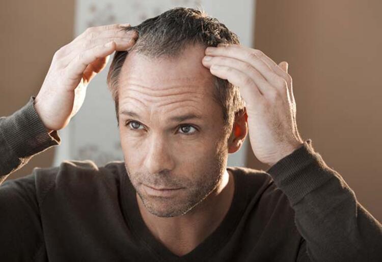 """Kalıcı Makyaj Uzmanı Biyolog Mehmet Kandil, saç nezlesinin """"Prenses hastalığı"""" veya """" Rapunzel hastalığı"""" olarak bilindiğine dikkat çekti.Saç nezlesinin; erkeklere göre kadınlarda 3 kat dahafazla olduğunu söyleyerek şöyle konuştu:"""