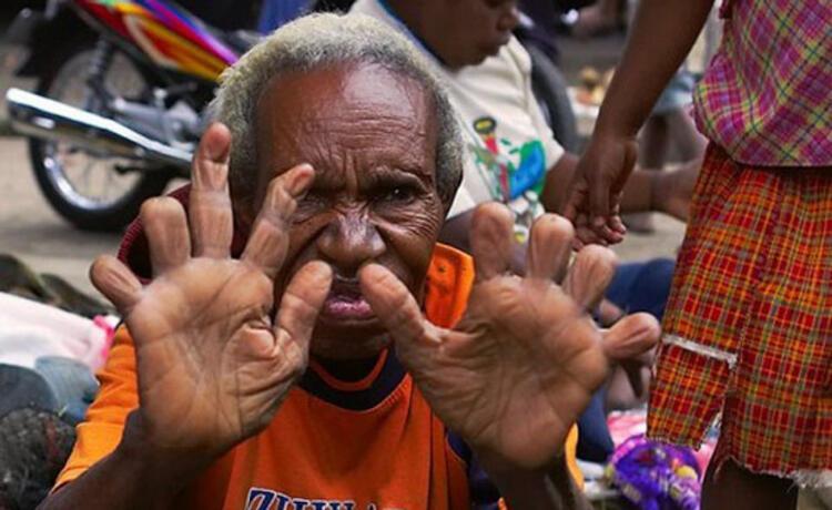 Parmak Kesme, Papua Yeni Gine