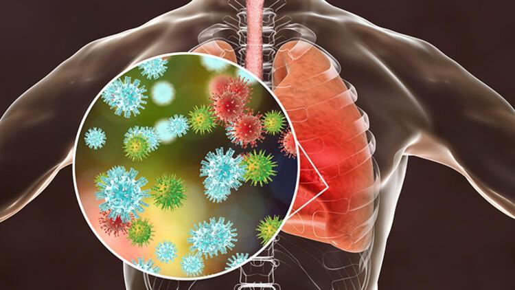 3-Astım ile bronşit aynı hastalık mı