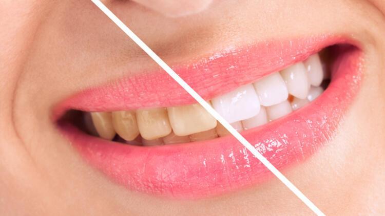 Diş beyazlatan ürünlere dikkat