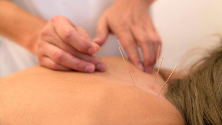 4-Akupunktur