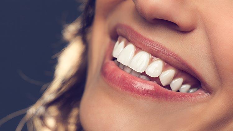 Dişlerdeki şeffaflaşmaya dikkat