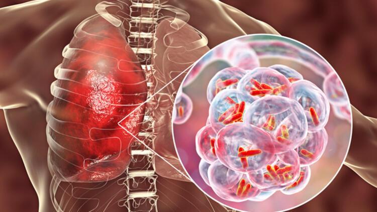 Akciğerde iltihaba neden oluyor
