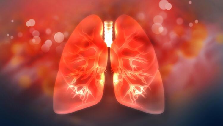 Alveoler mikrolitiazis nasıl tedavi edilir