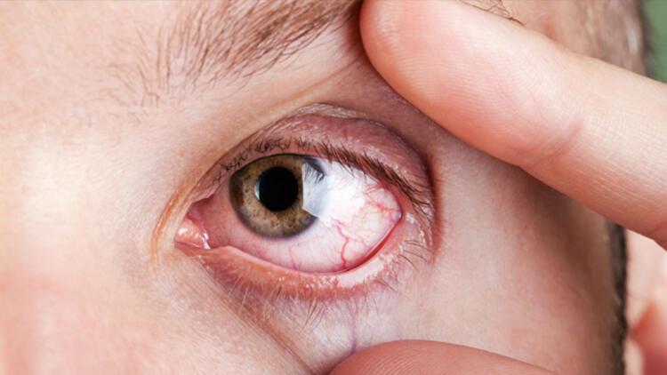 PEMBENAR ÖZEL1-Kuru göz sendromu